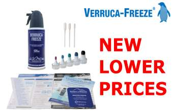 New lower prices on Cryosurgery Verruca-Freeze products